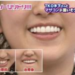 菊地亜美整形歯を差し歯に変えてすっぴん髪型体重ウエスト_ロハス美容ブログ